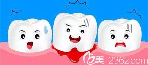 牙齿松动导致牙周炎