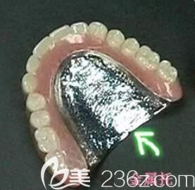 全口金属胶托义齿