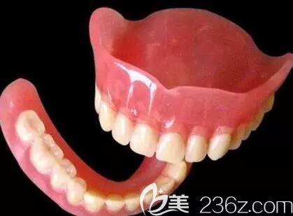 树脂胶托全口义齿