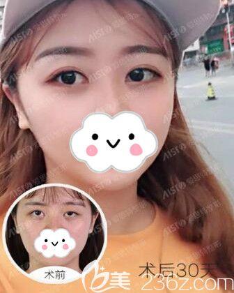看天生大小眼的她找长沙爱思特郑颖平做了双眼皮+上睑提肌手术后重拾自然漂亮美眼!