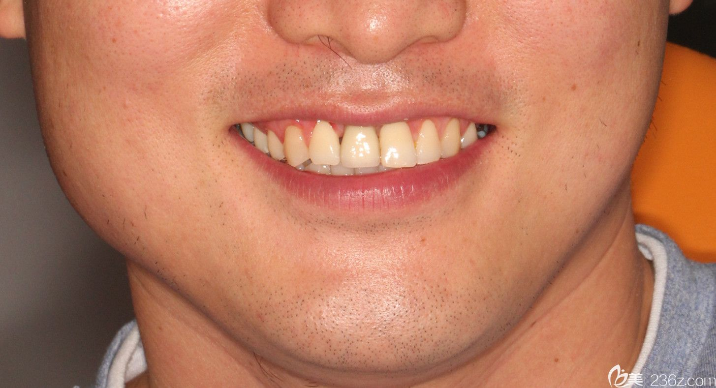 门牙缺失一颗能做瑞典nobel种植牙,有我在广州阳光树口腔的种牙案例为证