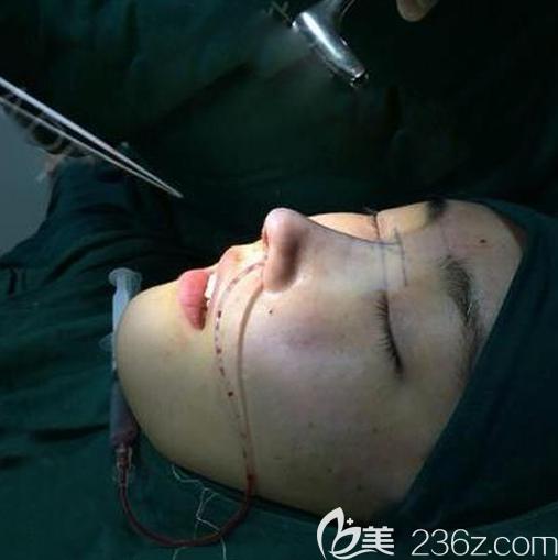 花1万多元找深圳整鼻子很有名的深圳阳光医院罗志敏医生为我做了膨体鼻综合隆鼻