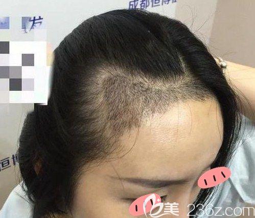 秃头妹来成都恒博植发做完M型发际线移植后各种发型都可轻松驾驭