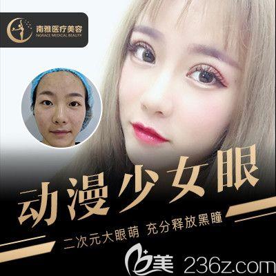 深圳南雅医疗美容医院张燕发做的双眼皮案例