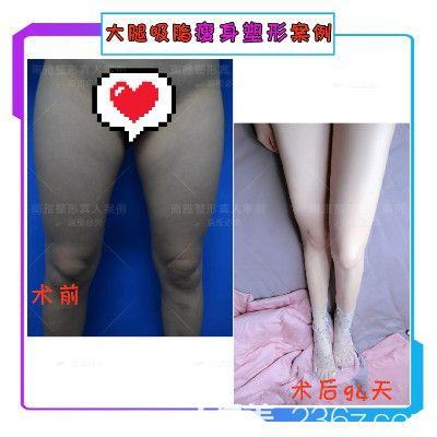 深圳南雅张燕发医生大腿吸脂案例