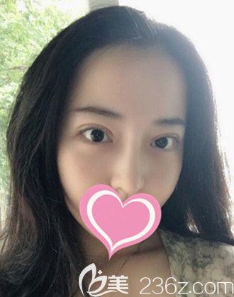 想知道郑州华领割双眼皮怎么样就来看我找张永涛做的双眼皮和隆鼻恢复全过程