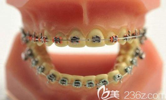 张子扬医生擅长各类牙性畸形的矫治
