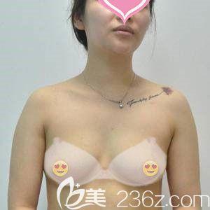 武汉爱思特(原伊美尚)医疗美容医院袁伟术前照片1