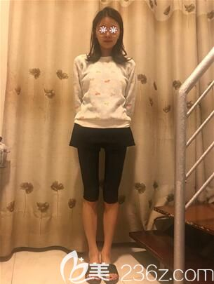 我在重庆美莱做大腿抽脂感受很深的一点就是没有凹凸不平,然后一般的疼