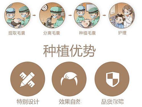 南京新秀植发手术过程