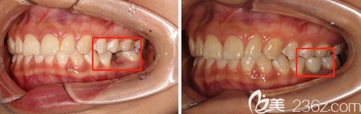 听别人说种牙3年就坏了,那为啥我在广州阳光树口腔做完种植牙超过10年了还好好的