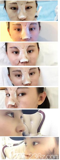 鼻综合1-7天恢复过程图