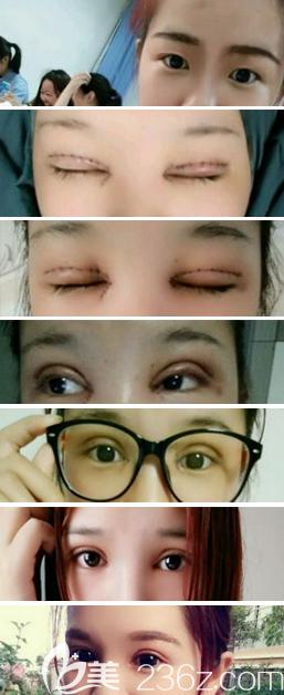 眼综合术后1-7天恢复过程图