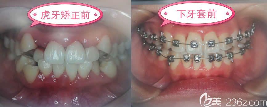 自锁托槽牙套_怎么也没想到在福州维乐口腔戴自锁金属托槽牙套才花了15000元就 ...