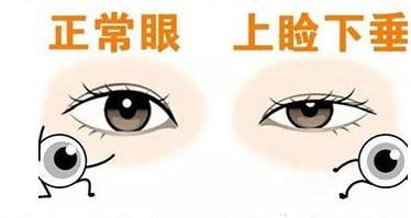 想做上睑下垂矫正来韩国原辰看看提升的不仅仅是皮肤肌肉弹性