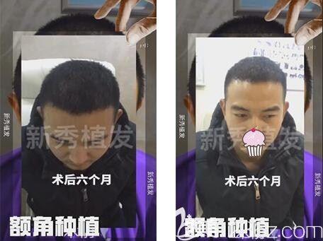 今年6月2号我被南京新秀植发诊断为遗传雄性m型脱发,之后种植了2600毛囊单位