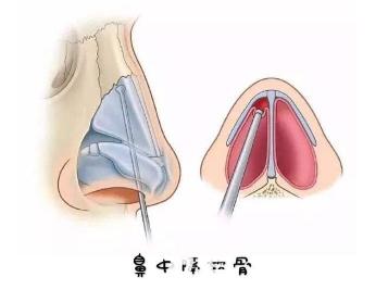 虽然鼻中隔软骨隆鼻的吸收率只有2%左右但是大量取出会让鼻子失去支撑力