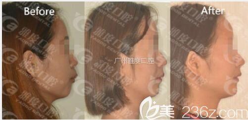骨性龅牙打卡广州雅度口腔活动翼舌侧托槽矫正,爆对比图自行感受凸嘴变化