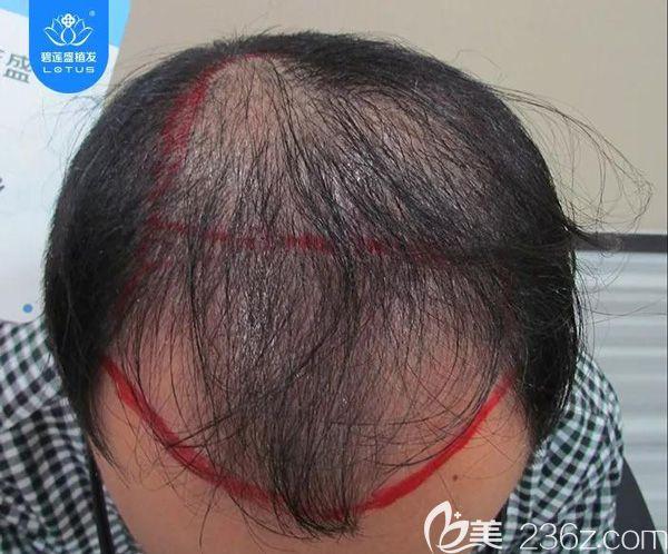 6级脱发植发4500单位,看看狂脱期后头发会呈现怎样的效果?