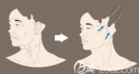 韩国原辰拉皮手术