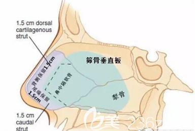 不取出全部的鼻中隔软骨来做隆鼻手术是不会造成鼻部塌陷问题的