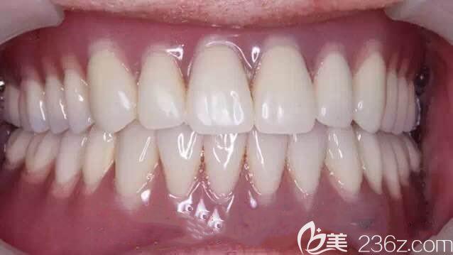 做完locator种植覆盖义齿修复图示