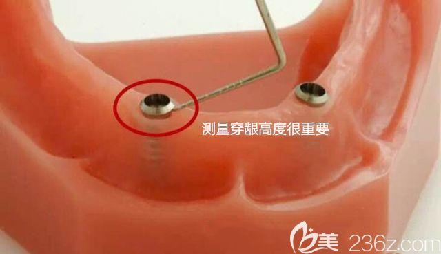测量穿龈高度图示