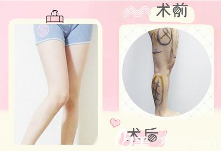 大腿吸脂前后对比图片