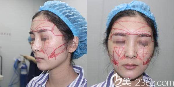 南京熙而美整形美容医院李昌术前照片1