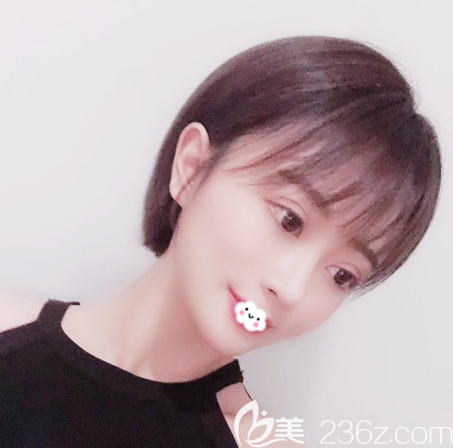广州中家医家庭医生鼻综合隆鼻案例一个月效果图