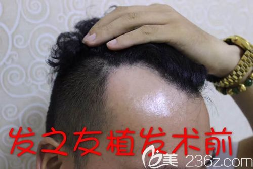 在植发前试了很多防脱方法都没效果