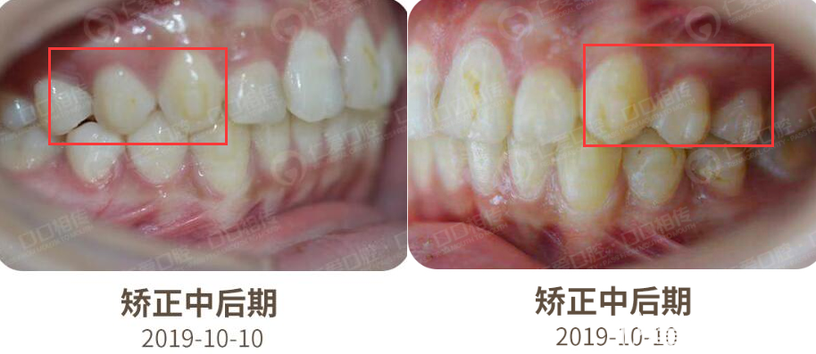 我的女儿牙齿不齐,感觉戴时代天使标准版牙套的矫正效果比我想象的要好呢!