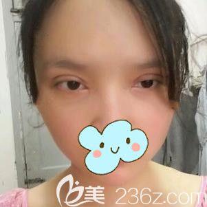 割双眼皮术后25天眼睛出现疤痕增生和大小眼