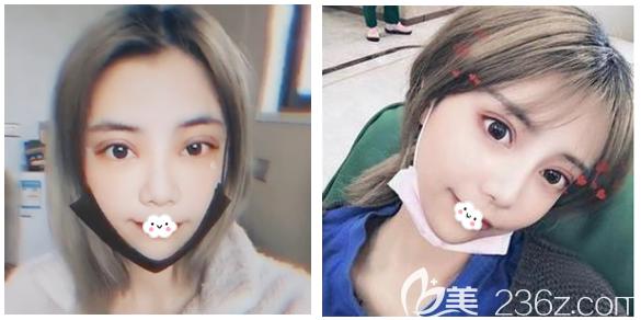 看深圳美莱林登文双眼皮修复一个月效果怎么样