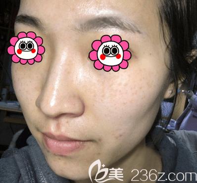 杜明贤医生给我做蜂巢皮秒祛斑第5天样子