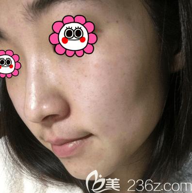 我在北京欧扬做蜂巢皮秒祛斑一个月效果