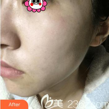 北京欧扬医疗美容门诊部杜明贤术后照片1