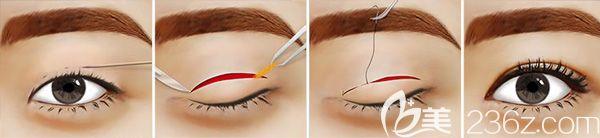 切开双眼皮手术原理