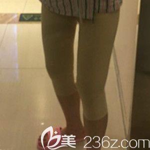 做大腿吸脂术后2天腿部明显肿胀