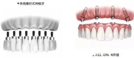 allon4种植牙对比传统种植牙价格低创伤小
