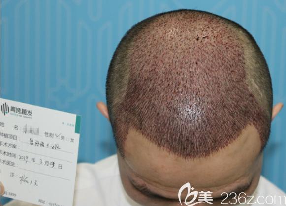 头发种植3000单位术后即刻照片