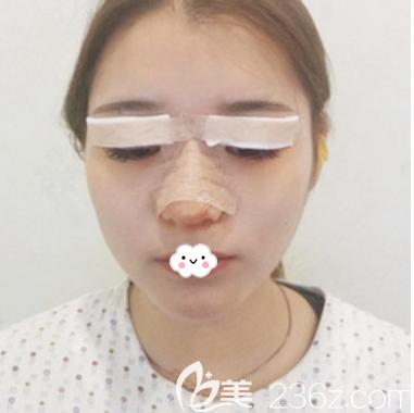 深圳铂雅医疗整形美容门诊部涂杰周术前照片1