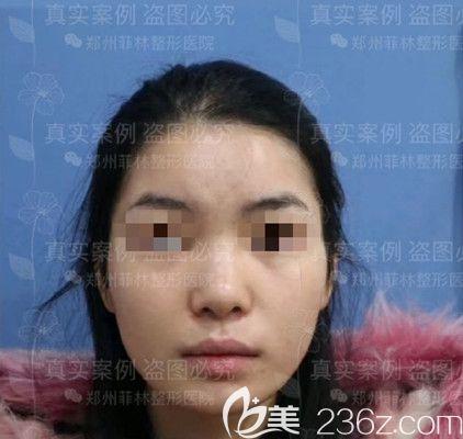 郑州菲林医疗美容门诊部骆豫术前照片1