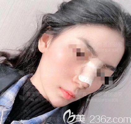 假体隆鼻手术5天