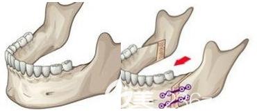 其实凸嘴除了靠做双鄂手术可以解决之外还有很多方法