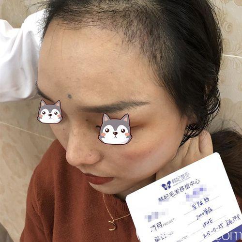 广州韩妃植发中心董爱军术后照片1