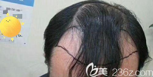 济南碧莲盛植发尹梓贻术前照片1