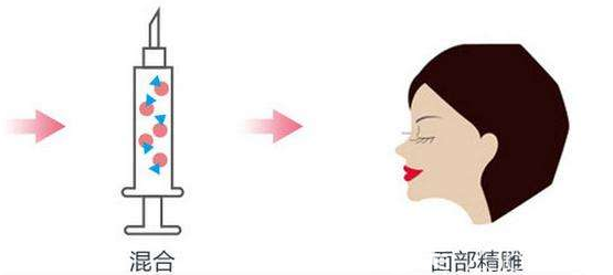 切记要想提高自体脂肪填充全脸后的成活率就不能热敷冷敷或者做剧烈的运动