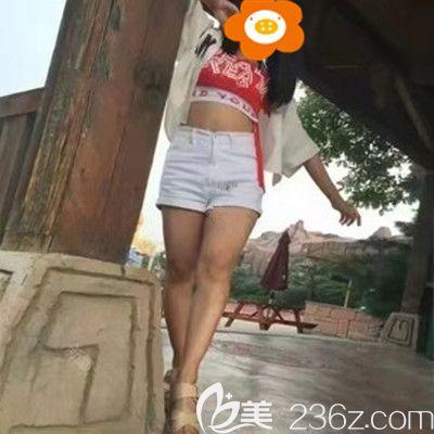福州比华利医疗美容医院刘耀美术前照片1