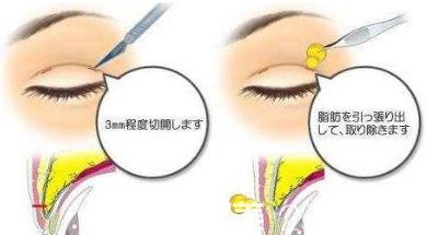 双眼皮手术麻醉